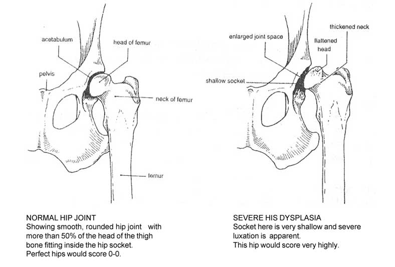hip_diagram